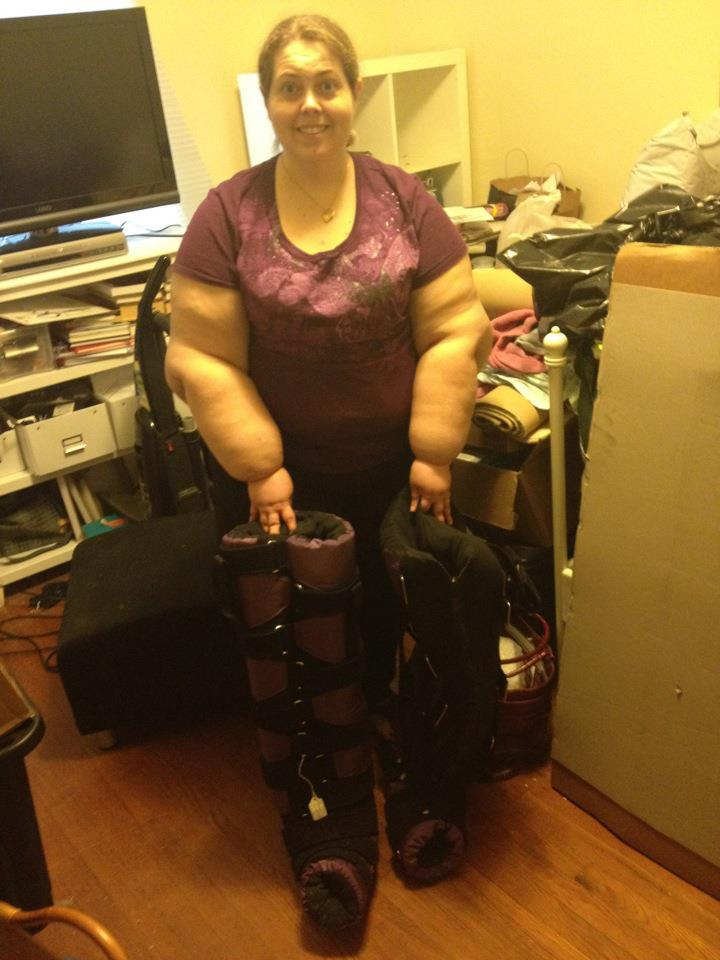 Living with Lipedema & Lymphedema